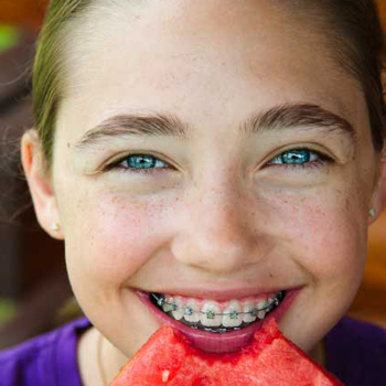 What To Eat With Braces Orthodontic Patient Information Southgate