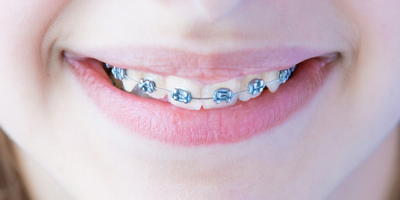 Fixed conventional braces